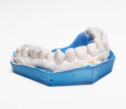 img-odontologie-empreinte